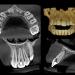 .sitecore.media_library.Images.3D_Imaging.CS_8100_3D.Images.CS_8100_3D_Precision_Feature